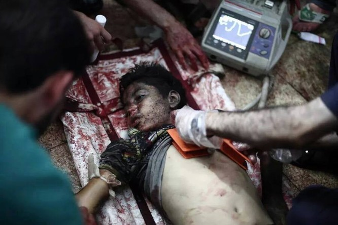 Chùm ảnh thảm họa nhân đạo trẻ em ở địa ngục Syria ảnh 19