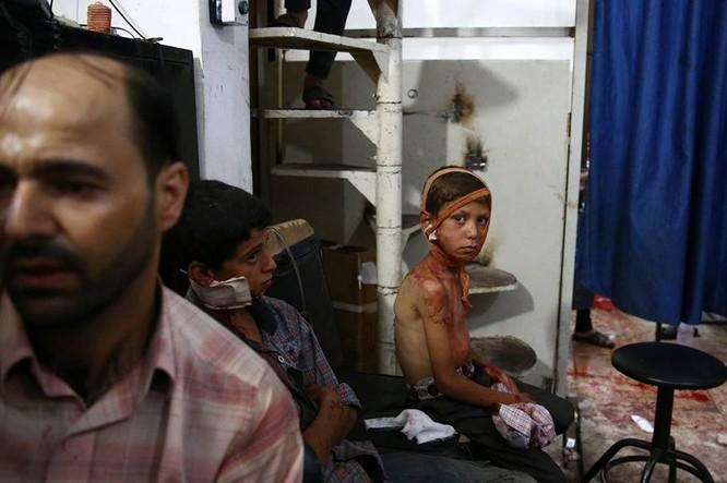 Chùm ảnh thảm họa nhân đạo trẻ em ở địa ngục Syria ảnh 20