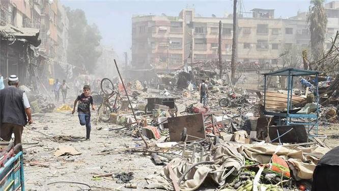Chùm ảnh thảm họa nhân đạo trẻ em ở địa ngục Syria ảnh 21