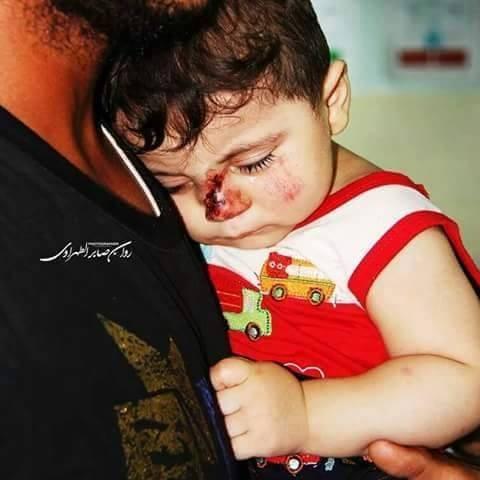Chùm ảnh thảm họa nhân đạo trẻ em ở địa ngục Syria ảnh 23