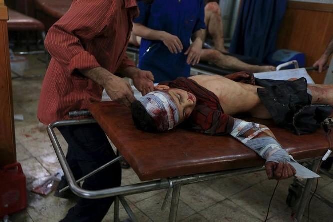 Chùm ảnh thảm họa nhân đạo trẻ em ở địa ngục Syria ảnh 26