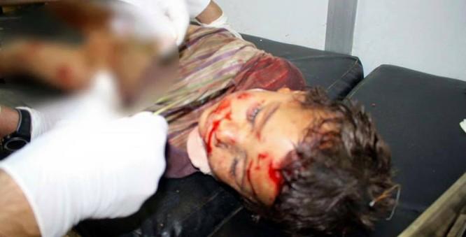 Chùm ảnh thảm họa nhân đạo trẻ em ở địa ngục Syria ảnh 27