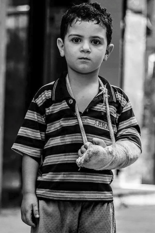 Chùm ảnh thảm họa nhân đạo trẻ em ở địa ngục Syria ảnh 29