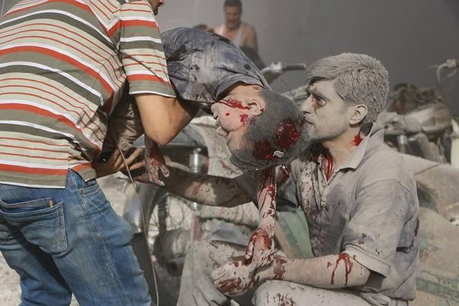Chùm ảnh thảm họa nhân đạo trẻ em ở địa ngục Syria ảnh 34