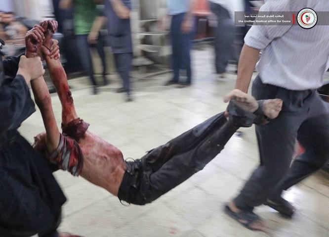 Chùm ảnh thảm họa nhân đạo trẻ em ở địa ngục Syria ảnh 35