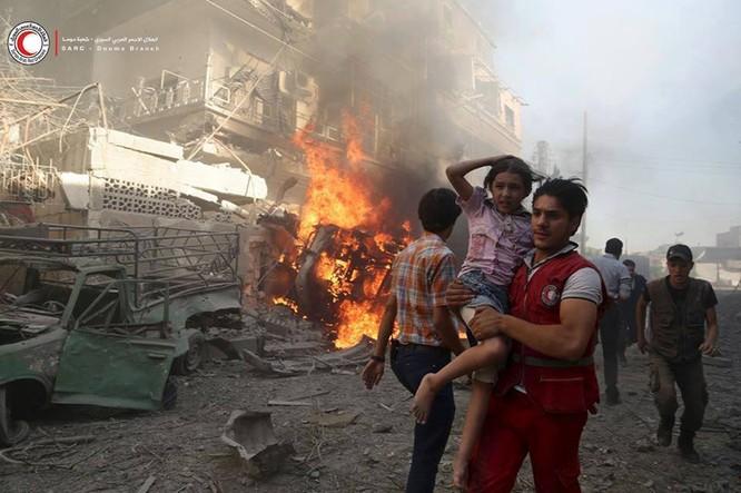 Chùm ảnh thảm họa nhân đạo trẻ em ở địa ngục Syria ảnh 43