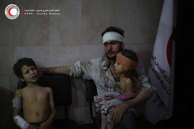 Chùm ảnh thảm họa nhân đạo trẻ em ở địa ngục Syria ảnh 44