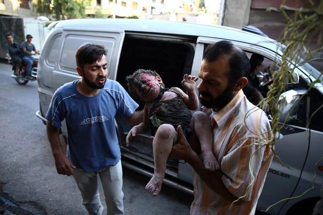 Chùm ảnh thảm họa nhân đạo trẻ em ở địa ngục Syria ảnh 45
