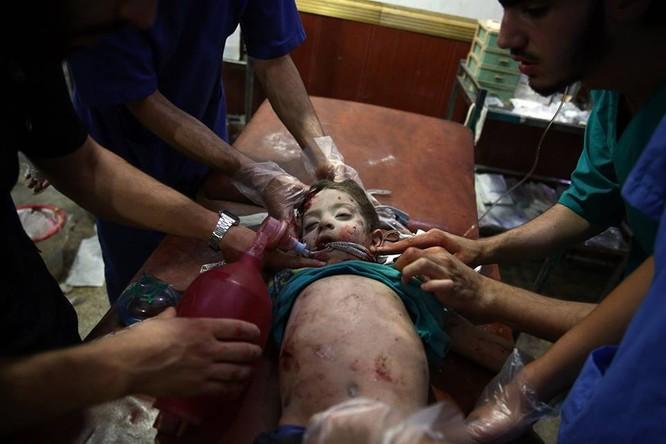 Chùm ảnh thảm họa nhân đạo trẻ em ở địa ngục Syria ảnh 46