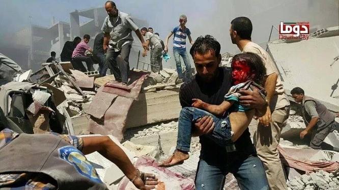 Chùm ảnh thảm họa nhân đạo trẻ em ở địa ngục Syria ảnh 47