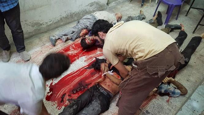 Chùm ảnh thảm họa nhân đạo trẻ em ở địa ngục Syria ảnh 50