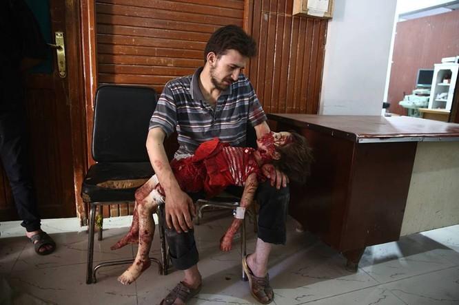 Chùm ảnh thảm họa nhân đạo trẻ em ở địa ngục Syria ảnh 53