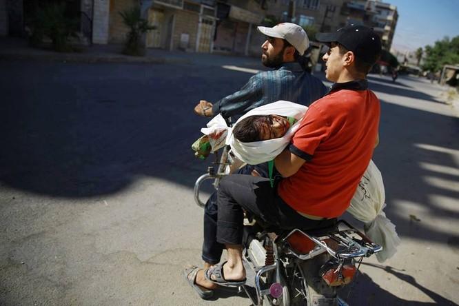 Chùm ảnh thảm họa nhân đạo trẻ em ở địa ngục Syria ảnh 54