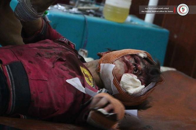 Chùm ảnh thảm họa nhân đạo trẻ em ở địa ngục Syria ảnh 56