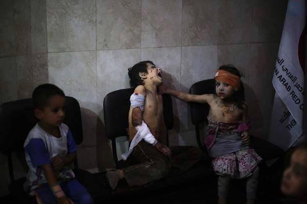 Chùm ảnh thảm họa nhân đạo trẻ em ở địa ngục Syria ảnh 57