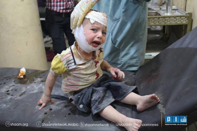 Chùm ảnh thảm họa nhân đạo trẻ em ở địa ngục Syria ảnh 59