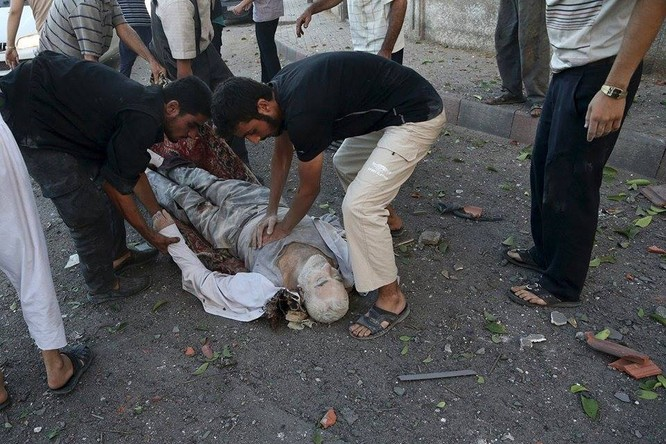 Chùm ảnh thảm họa nhân đạo trẻ em ở địa ngục Syria ảnh 60