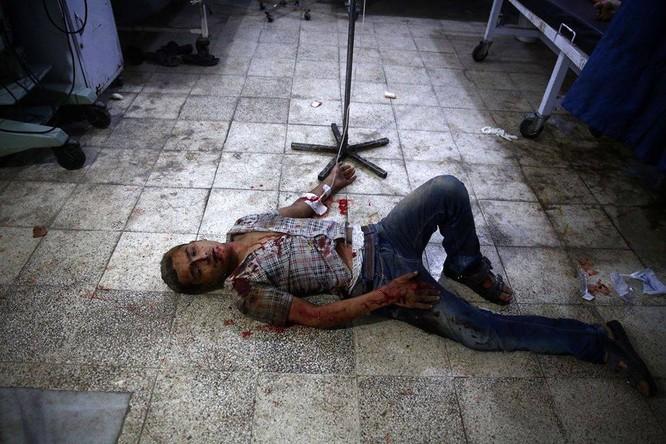 Chùm ảnh thảm họa nhân đạo trẻ em ở địa ngục Syria ảnh 61