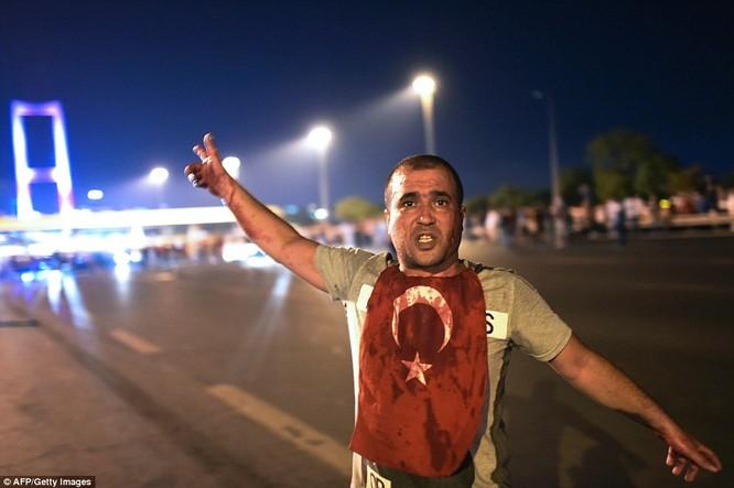 Video, Ảnh toàn cảnh cuộc đảo chính thất bại của quân đội Thổ Nhĩ Kỳ ảnh 15