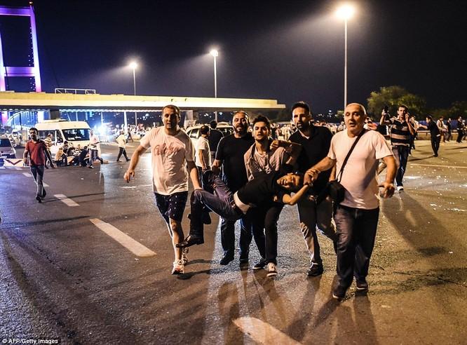 Video, Ảnh toàn cảnh cuộc đảo chính thất bại của quân đội Thổ Nhĩ Kỳ ảnh 32