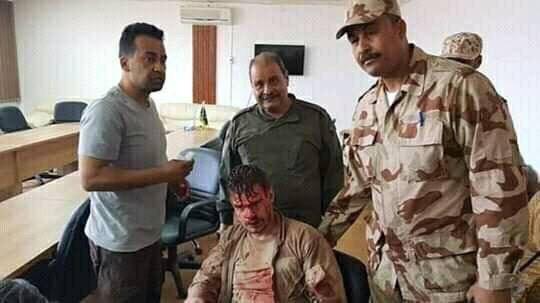 Tư lệnh trưởng Quân đội Quốc gia Libya kêu gọi chiến đấu, LNA hạ một Mirage F-1 ảnh 5