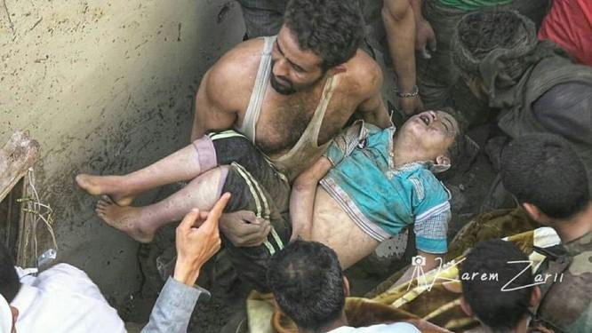 Houthi không kích trạm bơm dầu của Ả rập Xê út, Liên minh vùng Vịnh ném bom dân thường ở thủ đô Yemen ảnh 5