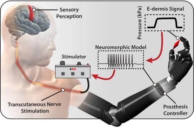 Da điện tử giúp người cụt chi cảm nhận được cảm giác đau và đồ vật ảnh 1