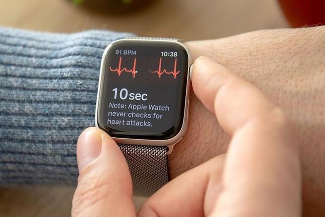 Đây là lý do tôi không dùng Apple Watch hay bất cứ smartwatch nào khác ảnh 2