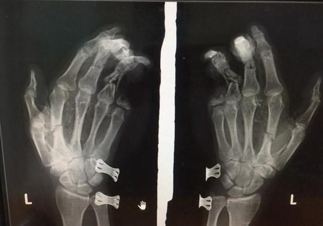 Điện thoại phát nổ khi đang sạc, nam thanh niên bị dập nát bàn tay ảnh 1