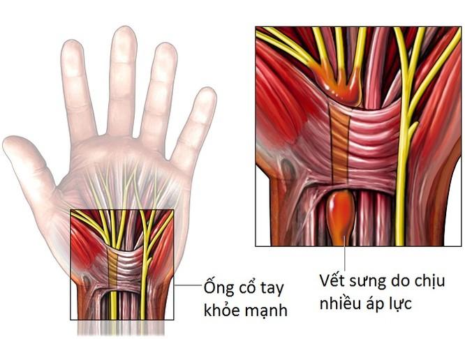 Nghiện đồ công nghệ làm tăng nguy cơ mắc hội chứng ống cổ tay ảnh 1