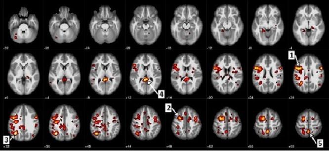 Trí tuệ nhân tạo của IBM có thể dự đoán bệnh tâm thần phân liệt ảnh 1