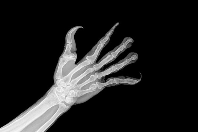 Đây là bàn tay con người nếu chúng được tiến hóa dành cho smartphone ảnh 2
