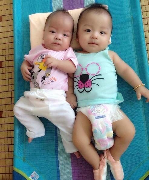 """""""Khoảng cách"""" của 2 bé khi Hoàng Thiên (trái) mới ghép tế bào gốc hồi tháng 4/2017."""
