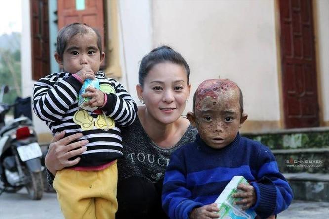 ĐS Huynh Trang Nhi tới thăm và tặng quà cho 2 em mắc bệnh hiểm nghèo tại Nghi Lộc (ảnh Hội CĐV SLNA)