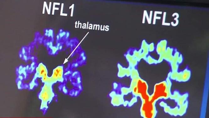 Phân tích não bộ của các bác sĩ phẫu thuật. Ảnh: Futurism.