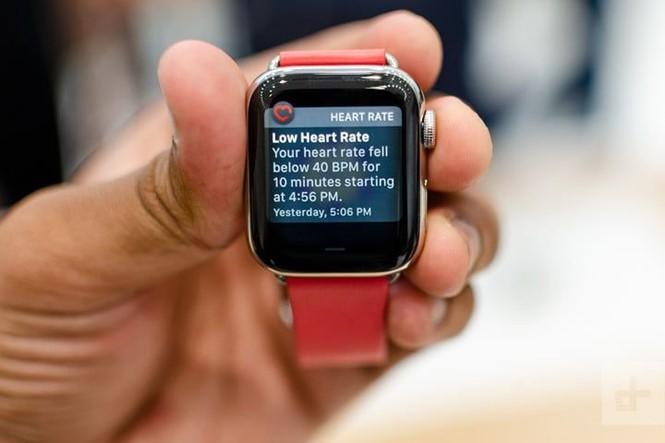 Bác sĩ tim mạch giải thích lý do lo lắng về mẫu Apple Watch mới - ảnh 2