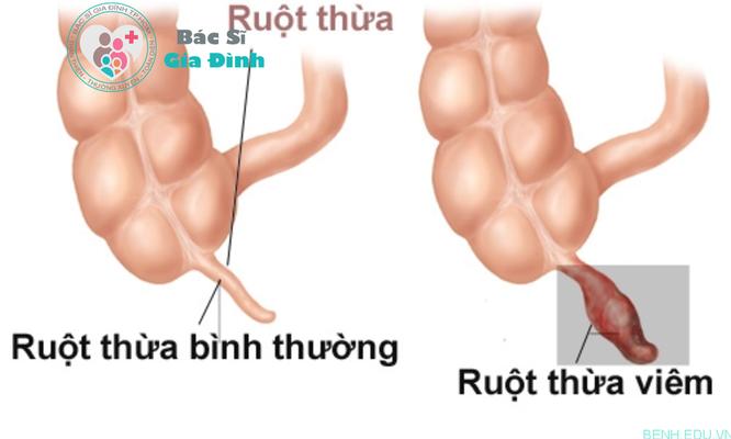 Các bác sỹ Phần Lan công bố nghiên cứu điều trị viêm ruột thừa không cần phẫu thuật ảnh 1