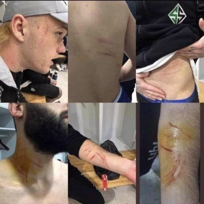 Một cầu thủ Thổ Nhĩ Kỳ bị cáo buộc giấu lưỡi dao lam để gây thương tích cho các cầu thủ đối phương trong suốt trận đấu ảnh 1