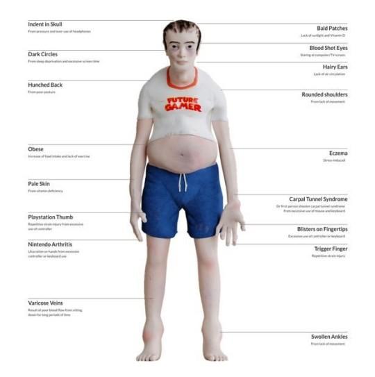 Cơ thể người nghiện game sẽ thay đổi đáng sợ như thế nào? ảnh 4