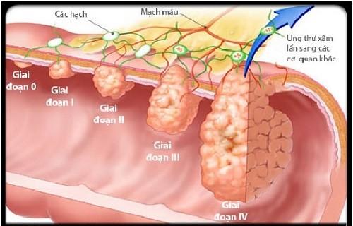 Mai Phương nhập viện vì ung thư phổi, căn bệnh này nguy hiểm như thế nào? ảnh 4