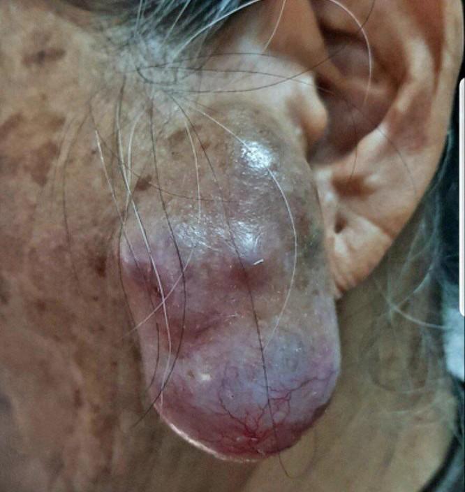 Những khối u kỳ lạ được chữa trị tại bệnh viện 175