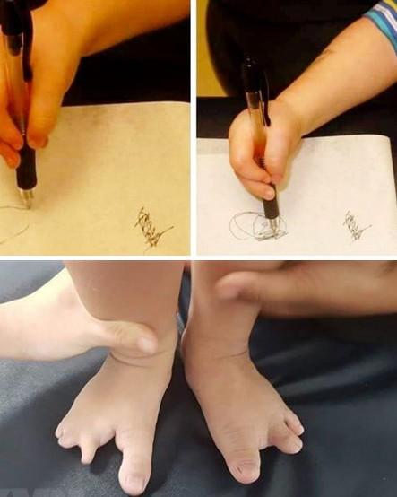 Hội chứng tay chân càng cua rất hiếm gặp