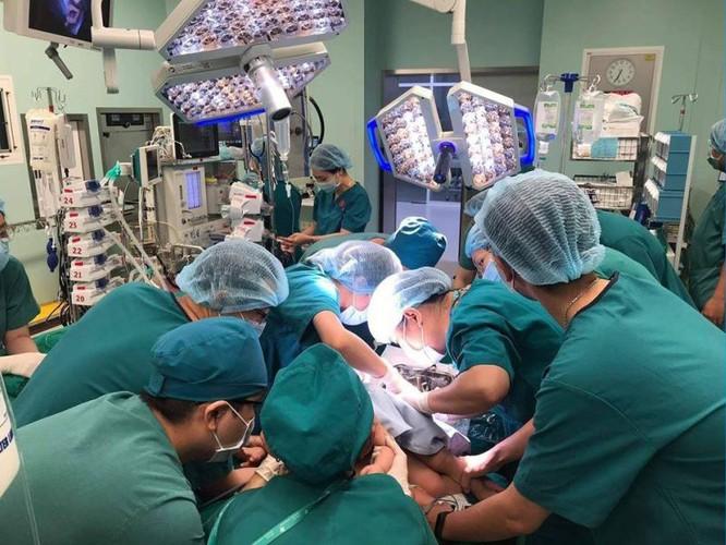 Ca mổ tách Song Nhi được đề cử Thành tựu y khoa Việt Nam 2020 ảnh 1