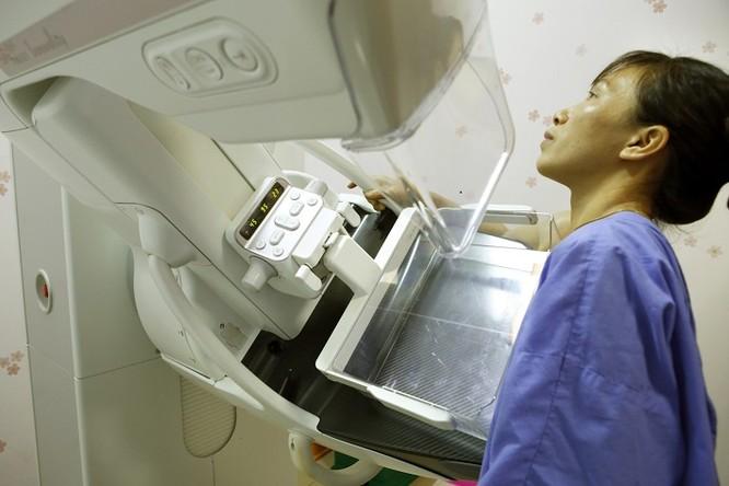 Bệnh nhân chụp Xquang vú tại Bệnh viện Bạch Mai