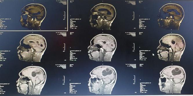 Ảnh chụp CT cho thấy sán làm tổ trong não của anh N.