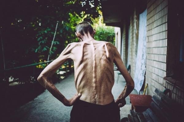 Bệnh nhân mắc bệnh lao phổi (Ảnh: Báo Lao động)