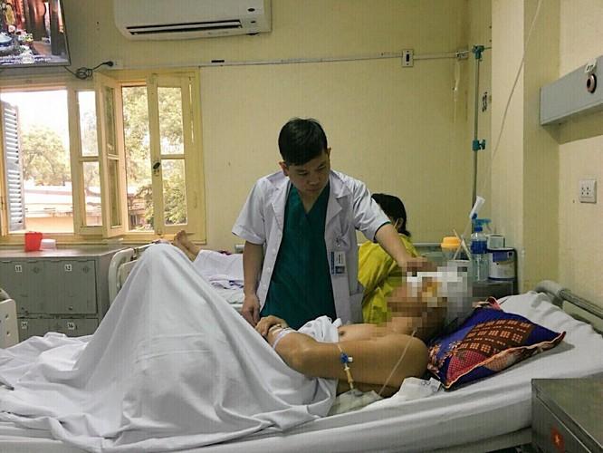 Cứu công nhân bị chấn thương sọ não rất nguy kịch ảnh 1