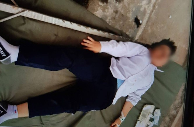 Bị cột đỡ sào cắm trúng đầu khi thể dục, nam sinh phải cấp cứu ảnh 1