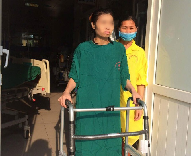 2 bệnh viện ra tay cứu cô gái trẻ bị di chứng của bệnh lao ảnh 2
