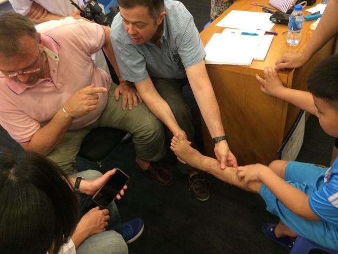 Khám miễn phí cho trẻ bị di chứng bỏng tại Bệnh viện đa khoa Xanh Pôn ảnh 1